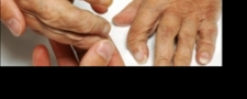 Assessing patient experiences with rheumatoid arthritis care